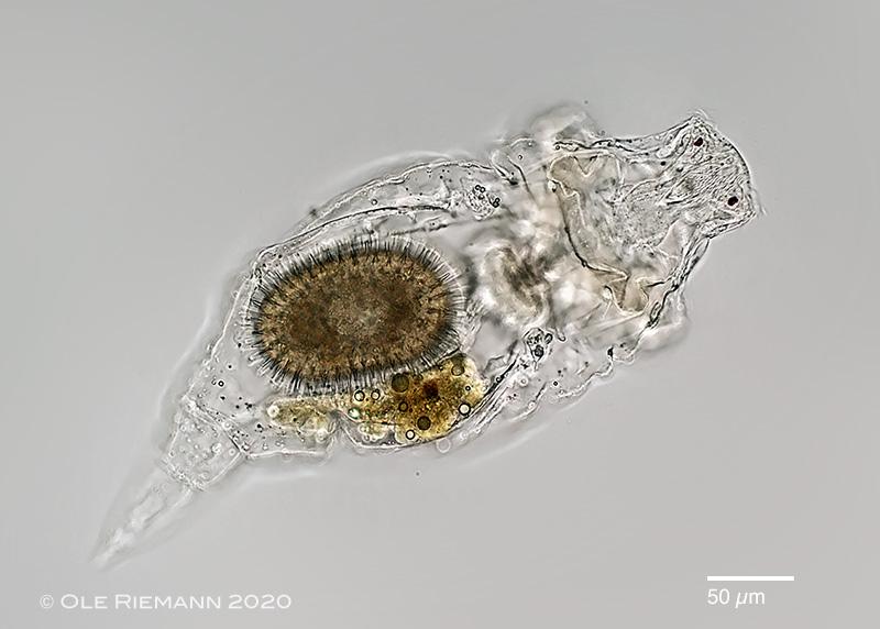 A female rotifer (Rhinoglena frontalis) carrying a resting egg.